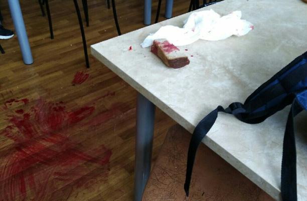 Кровавая драка в подмосковной школе
